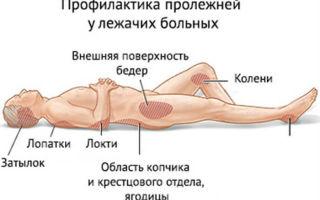 Лечение и профилактика пролежней у лежачих больных
