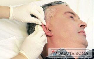 Особенности пролежня на ухе, его лечение и профилактика