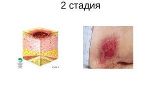 Пролежни мкб 10: l89 – декубитальная язва, уход и реабилитация лежачих пациентов