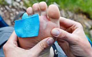 Симптомы бурсита большого пальца ноги: болевые ощущения и отечность конечностей