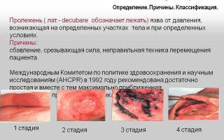 Хрипы у лежачего больного: причины, симптомы, лечение, осложнения