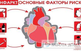 Смерть от инфаркта миокарда и ее основные причины