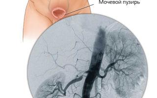 Нефрогенная артериальная гипертензия: симптомы и лечение
