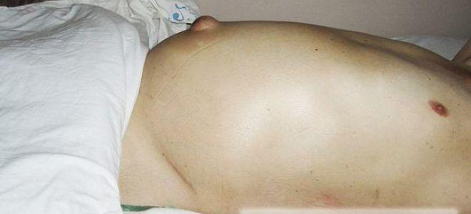 Появление синяков у лежачего пациента: причины образования, разновидности и их лечение