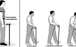 Как подобрать трость для ходьбы по росту: параметры
