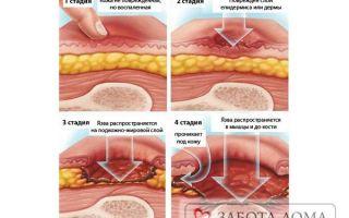 Открытые пролежни (рана): что это такое и как образовываются такие поражения, особенности, лечение