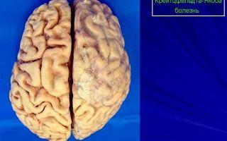 Первые симптомы синдрома крейтцфельдта-якоба: снижение памяти и остроты зрения