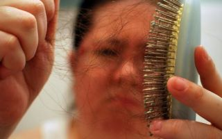 Сильное выпадение волос на голове у пожилых женщин – как и почему?