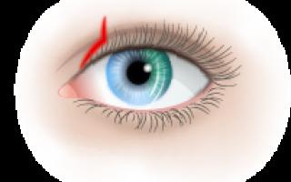 Причины и диагностика кератита глаза – симптомы, лечение и профилактика