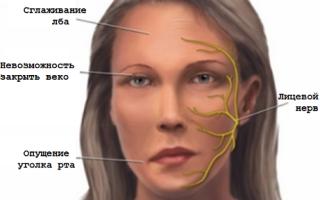 Неврит: первичный и вторичный
