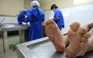 Аутопсия: вскрытие тела умершего для определения причины смерти