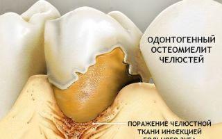 Остеомиелит: причины и диагностика заболевания