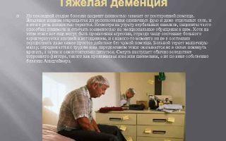 Деменция и признаки последней, предсмертной стадии у пациентов