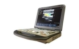 Критерии для выбора переносного узи аппарата – обзор нескольких моделей сканеров