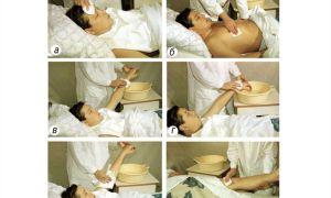 Уход за кожей лежачего больного, организация профессиональной помощи