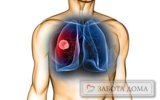 Застойная пневмония лежачих больных: каковы причины заболевания и как лечить?