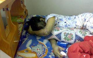 Передозировка снотворным с летальным исходом: классификация препаратов, симптомы передозировки, первая помощь для сохранения жизни человеку