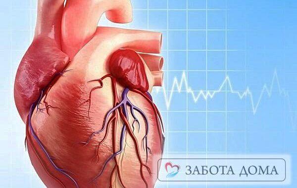 Как происходит смерть от острой сердечной недостаточности -