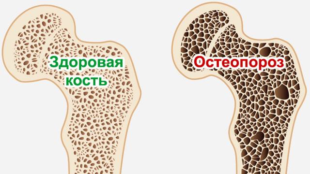 Кальций в продуктах питания, симптомы переизбытка микроэлемента