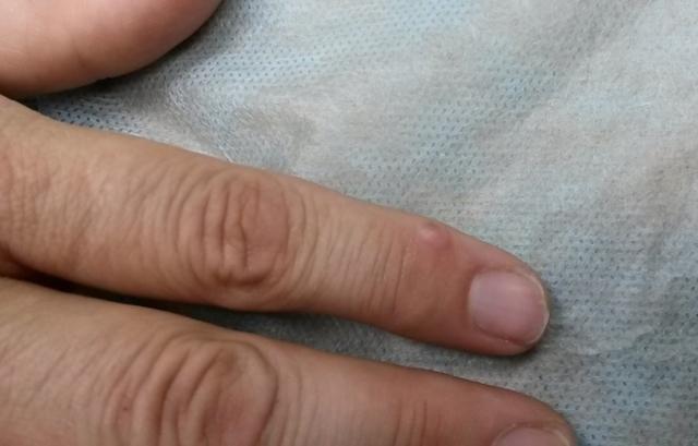 Синовиальная киста на пальце руки: симптоматика и методы диагностики