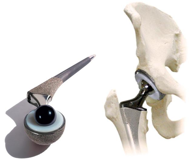 Перелом шейки бедра реабилитация после операции