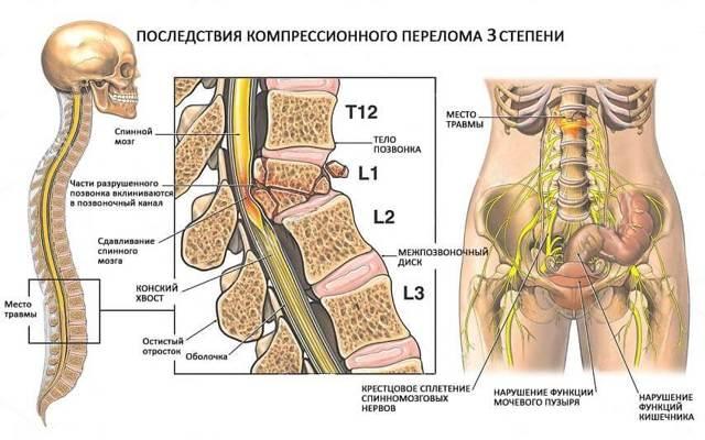 Компрессионный перелом позвоночника у пожилых: симптомы и лечение