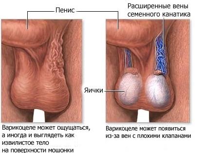 Увеличение мошонки у пожилых мужчин: причины и лечение