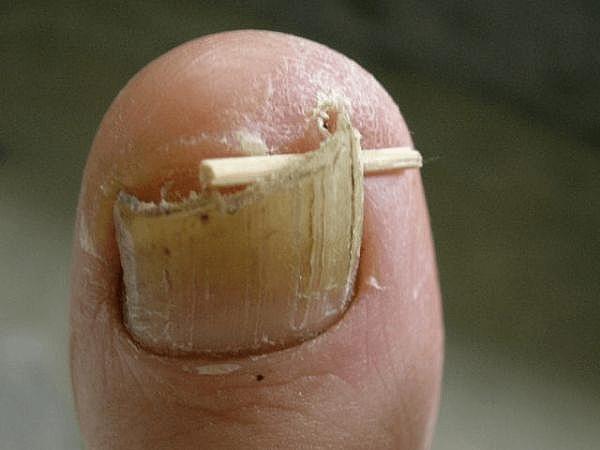 Как лечить онихокриптоз ногтей: медикаменты, ванночки, хирургическое вмешательство и народная медицина