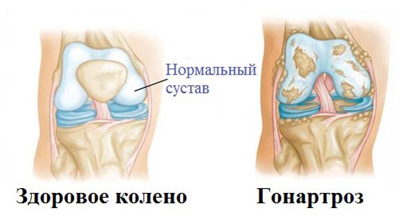 Лечение артроза суставов: медикаментозное, упражнения и диета