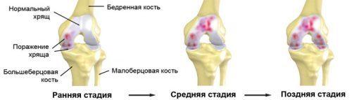 Лечение артроза коленного сустава в домашних условиях: гимнастика и народные методы