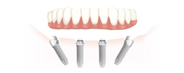 Протезирование зубо по методу all-on-4 в в медицинских клиниках Литвы: преимущества процедуры