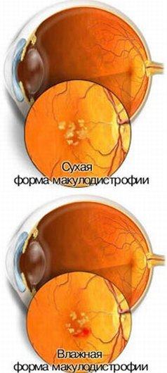 Дегенерация (макулодистрофия) желтого пятна