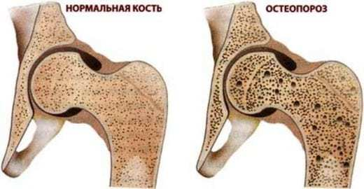 Комплекс ЛФК при остеопорозе позвоночника для престарелых: секреты здоровой жизни