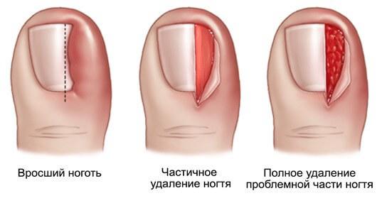 Как подстричь ногти и волосы пожилому человеку дома