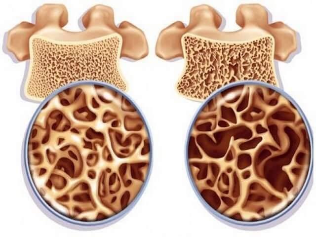 Причины чрезвертельного перелома бедра у пожилых: травмы и недостаток витаминов