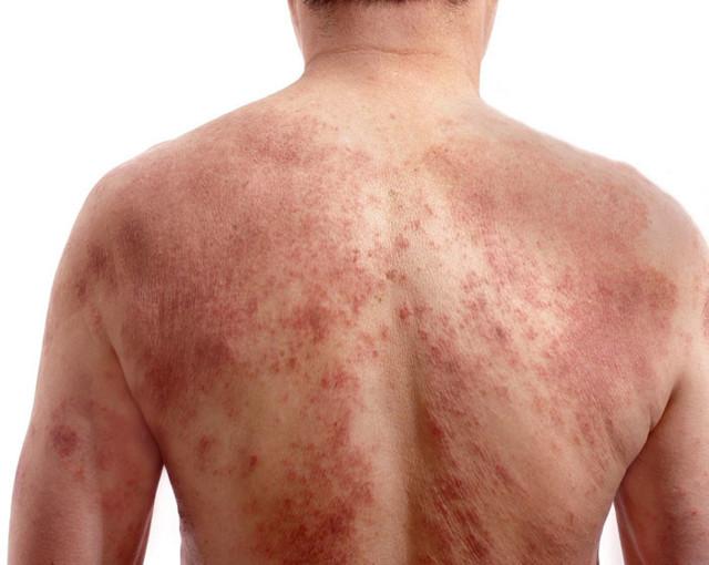 Ветряная оспа у пожилых: симптомы и осложнения