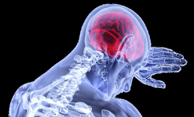 Рассеянный склероз, лечение народными средствами - видео