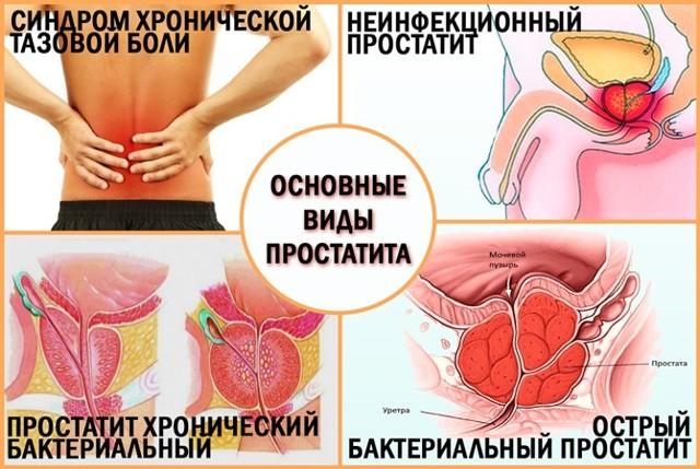 Что такое простатита у мужчин симптомы и лечение лечится ли простатита у мужчин отзывы