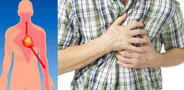 Как распознать инфаркт и стенокардию: симптомы и лекарства, что делать до приезда скорой