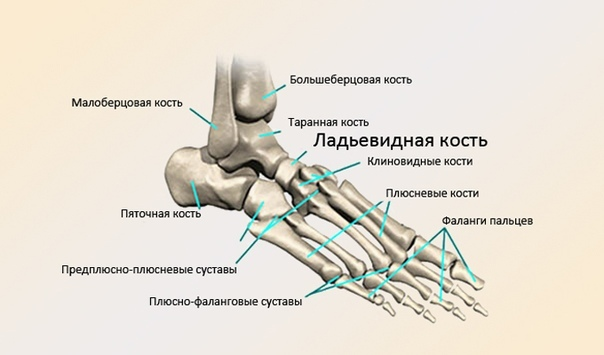 Экзостоз пяточной кости, симптомы и лечение дома