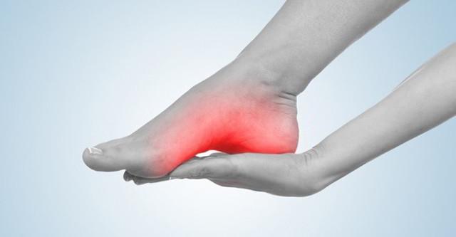 Ушиб и травма пятки: симптомы и лечение - особенно актуально пожилом возрасте