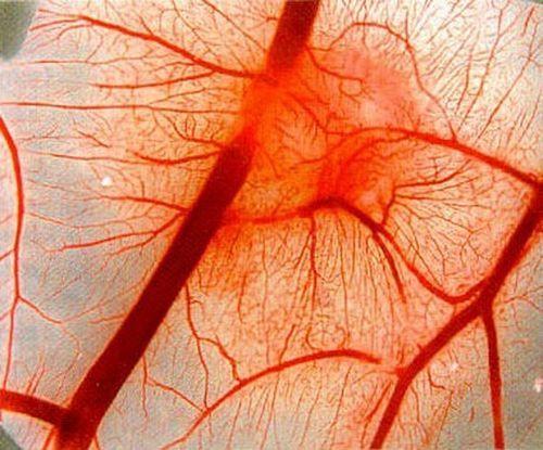 Болезнь Шёнлейна-Геноха у взрослых: симптомы и диагностика заболевания