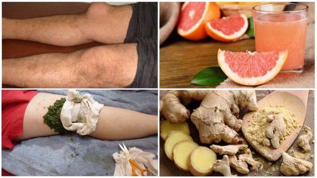 Лечение бурсита компрессами: водочный, соляной и прополисный