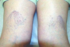 Хроническая венозная недостаточность нижних конечностей: симптомы и лечение