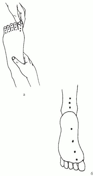 Как работает методика Шиацу: точки надавливания