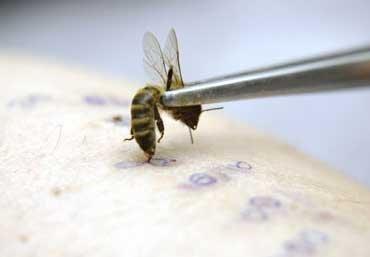 Апитерапия (лечение пчелами): какие болезни лечит