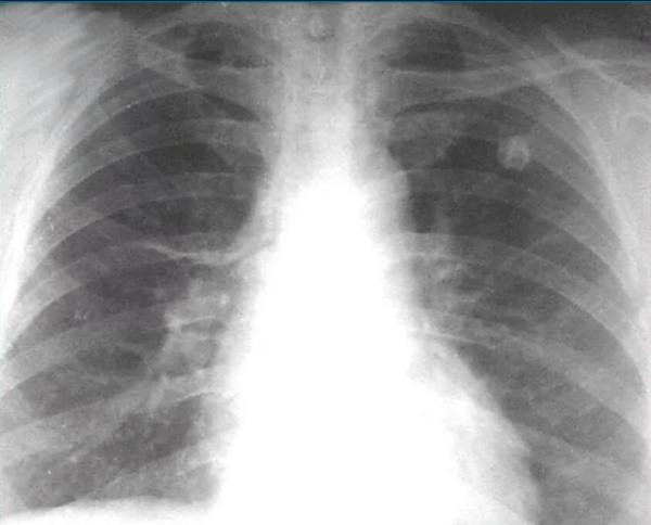 Туберкулез легких у пожилых людей: симптомы и особенности