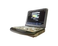 Критерии для выбора переносного УЗИ аппарата - обзор нескольких моделей сканеров