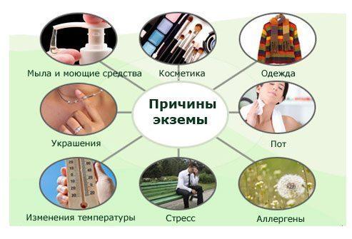 Экзема у пожилых людей: симптомы, диагоностика и лечение заболевания