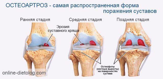 Как восстановить хрящевую ткань в суставах в пожилом возрасте